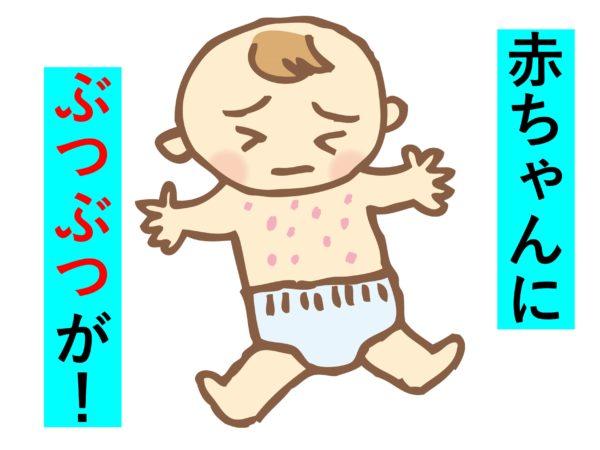 赤ちゃんに乳児発疹